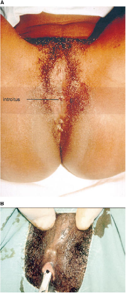 Male Versus Female Circumcision  - (warning: medical images of graphic nature) (2/2)